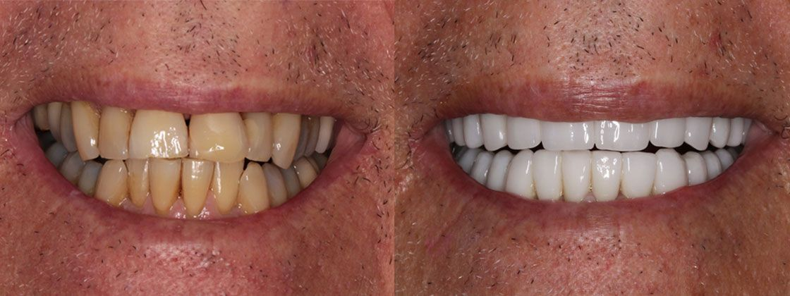 dentures results