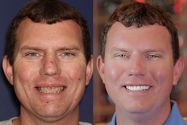 Dental Implant: Dental Implants and Fixed Porcelain Bridgework using IV Sedation