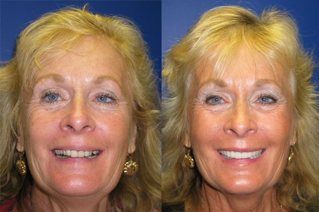 Complete Dental Restoration : Smile Lift/Complete Dental Restoration with Cosmetic Porcelain Crowns