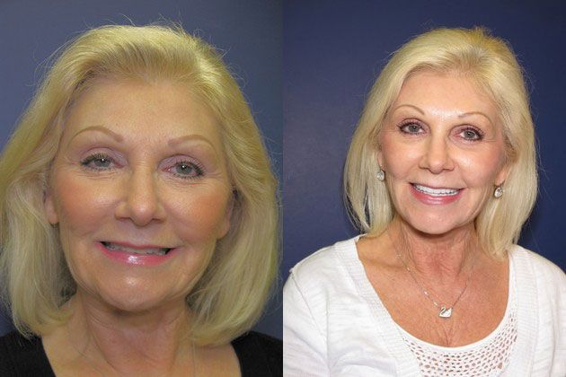 Full Mouth Restoration: Metal free cosmetic porcelain Veneers