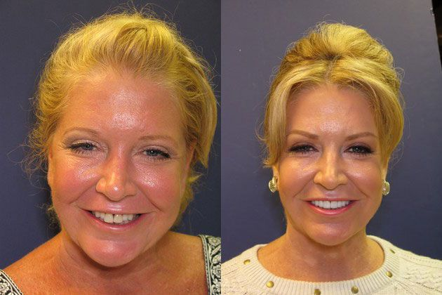 Cosmetic Porcelain Veneers: Pretty smile with more lip fullness