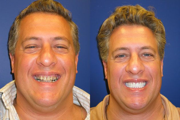 Cosmetic Porcelain Veneers: Porcelain Veneers Smile Makeover