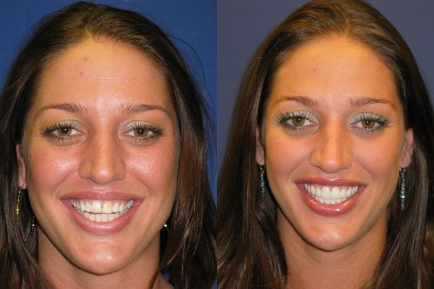 Smile Makeover / Smile Lift : Ultra Thin Cosmetic Porcelain Veneers