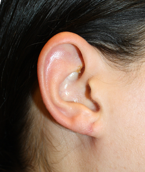 Torn Earlobe After